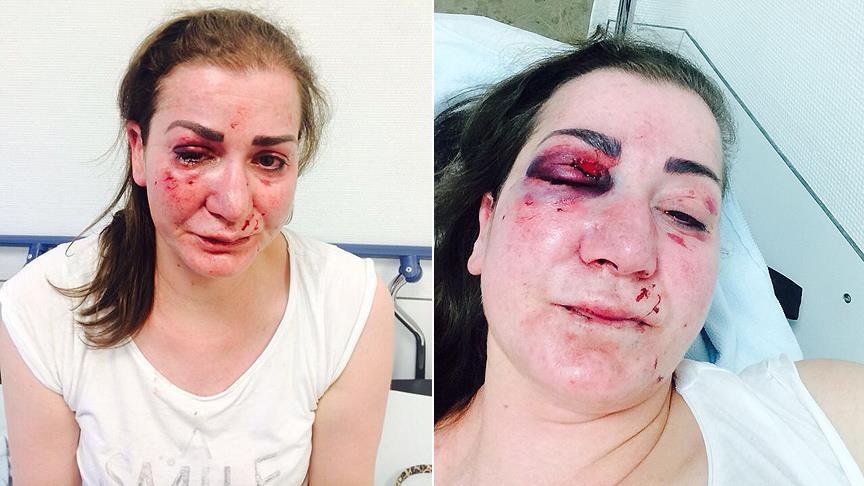 Almanya'da Türk kadına tramvayda saldırı galerisi resim 1