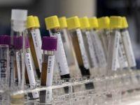Kan testiyle ölüm zamanı tespiti
