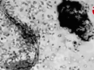 İnsan vücudundaki hücrelerin parazitle savaşı